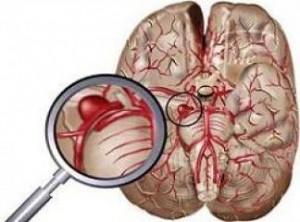 beyin absesiİ