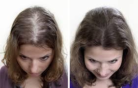 saç dökülmesinin cerrahi tedavisii