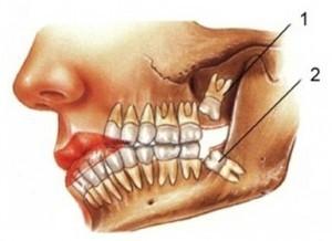yirmilik dişler